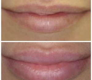 Köp Lips & Skin Filler Hyaluronsyra 1 ml