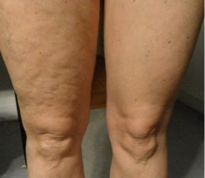 Super Skin Tightening Body Lotion 30 ml